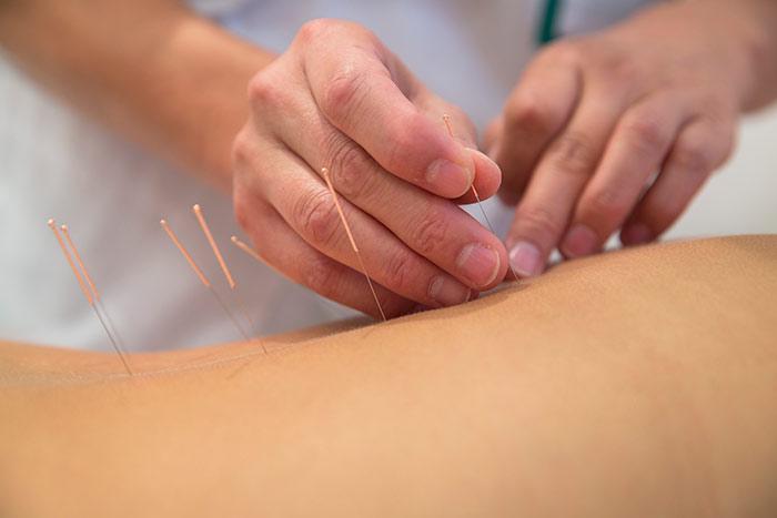 Healthsure Acupuncture