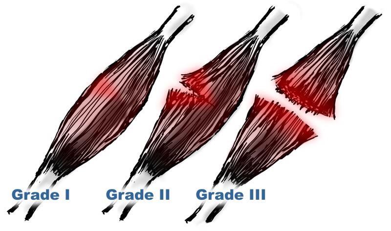 Muscle Tear Grades